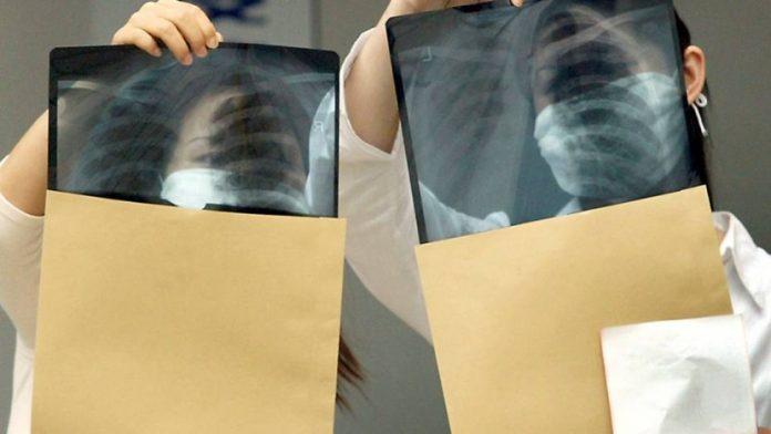 Doenças respiratórias matam 47 portugueses por dia - Observatório