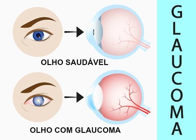 Glaucoma - A doença silenciosa