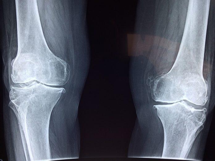 Raio X novo sem funcionar há cinco meses no Centro de Saúde de Mafra