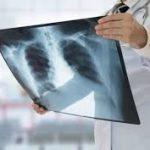 TORRES VEDRAS: Centro hospitalar muda local dos exames de diagnóstico